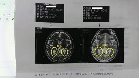 側脳室s - コピー - コピー.JPG