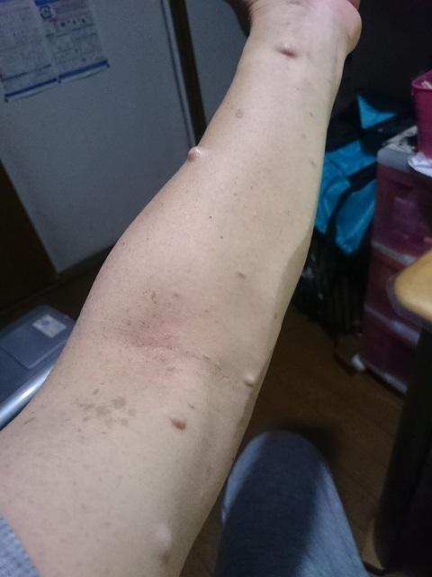 神経線維腫・・左腕.JPG
