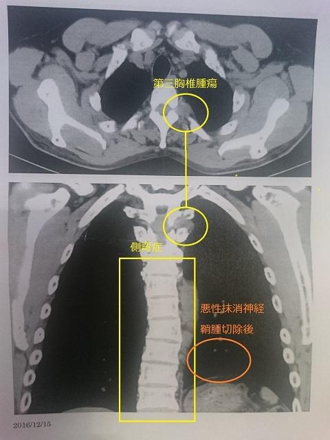 第三胸椎1・2016・12 - コピー - コピー.JPG