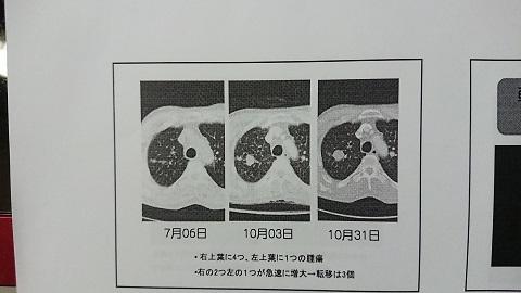 2017・11手術前3 - コピー.JPG